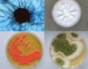 دانلود نمونه سوالات پایان ترم قارچ پزشکی استاد آذر سبکبار رشته میکروبیولوژی